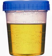 !0_0000_MORGUE_DrugTest_UrineSpecimenCup.jpg